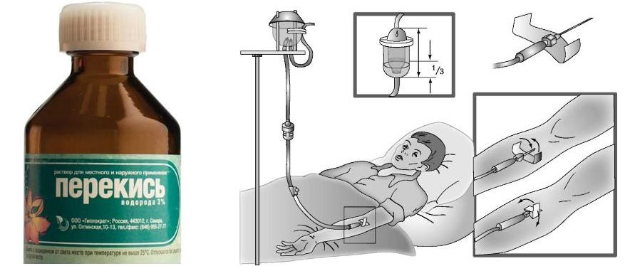 При внутривенном введении перекиси водорода