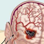 роблемы с мозговым кровообращением