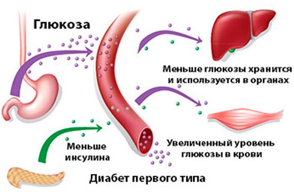 Диабет 1 и 2 типа разница и основные различия