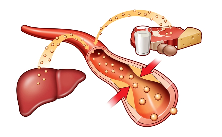 Повышенный сахар в крови: симптомы и признаки у мужчин и