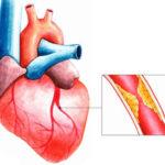 Снижению риска провоцирования тромбов