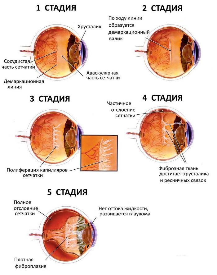 Стадии ретинопатии