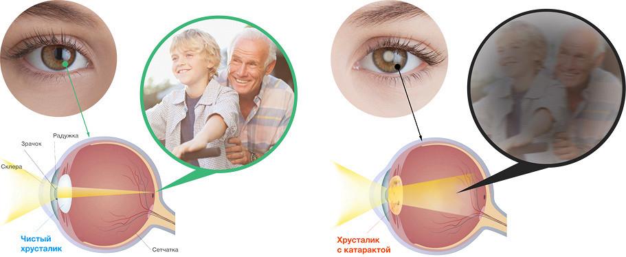 Ухудшение зрения при диабете