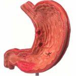 Язвенные процессы желудка