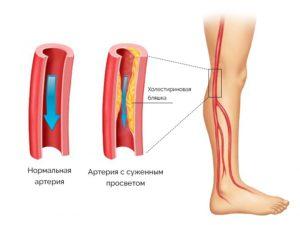 Периферические артерии нижних конечностей