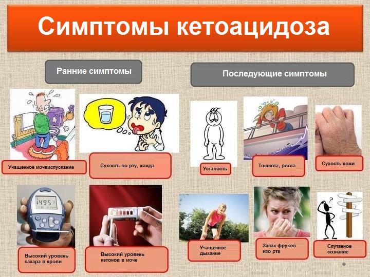Картинки по запросу кетоз диабетический