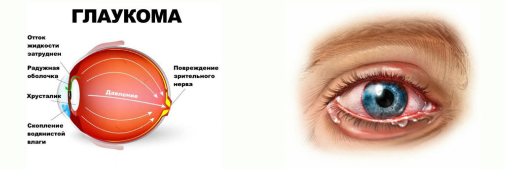 Диабетическая глаукома и ирит