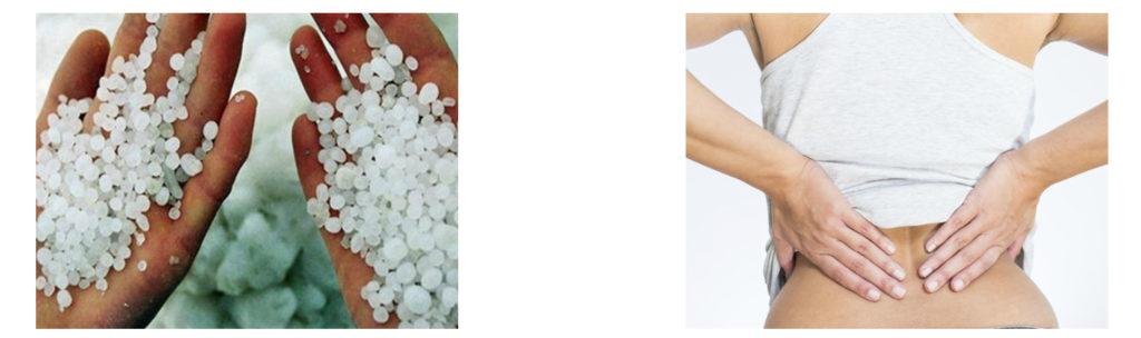 Солевой диабет почки