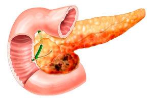 Поджелудочная железа диета как лекарство: меню диеты