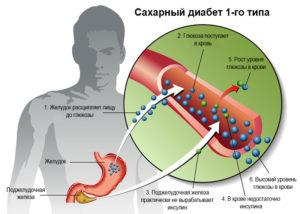 Работа пары инсулин-глюкоза
