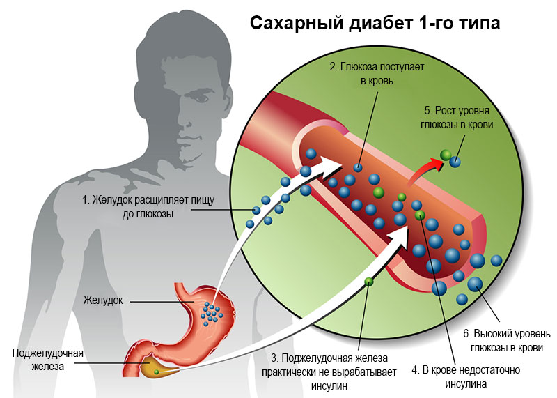 Сахарный диабет 1 типа инсулинозависимый: симптомы и лечение