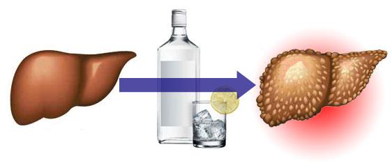 Злоупотребление алкоголем, болезни печени