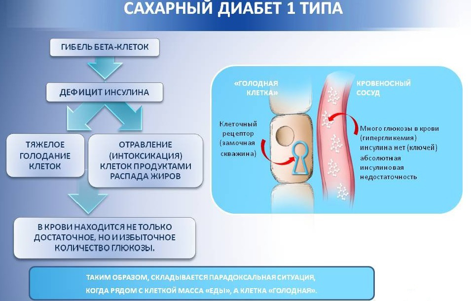 Диабет I типа