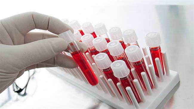 Лейкопения и тромбоцитопения