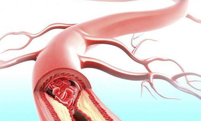 Влияния сахара на кровеносные сосуды