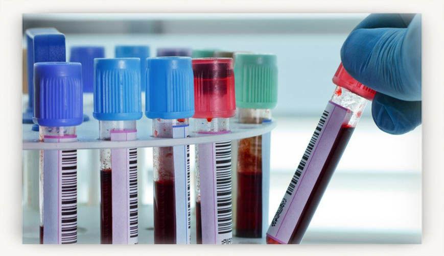 Анализ на инсулин - что он показывает, как сдавать и расшифровка