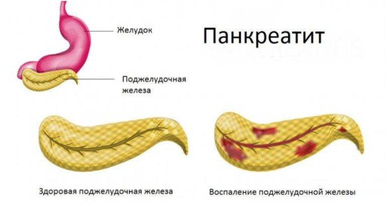 Панкреатит в острой форме