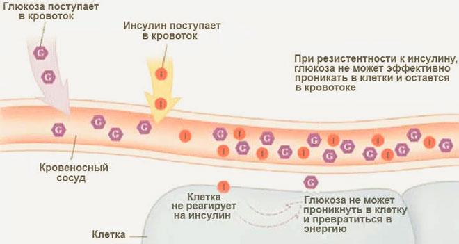 Снижение инсулинорезистентности при СД 2-го типа