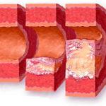 Снижение шанса развития атеросклероза