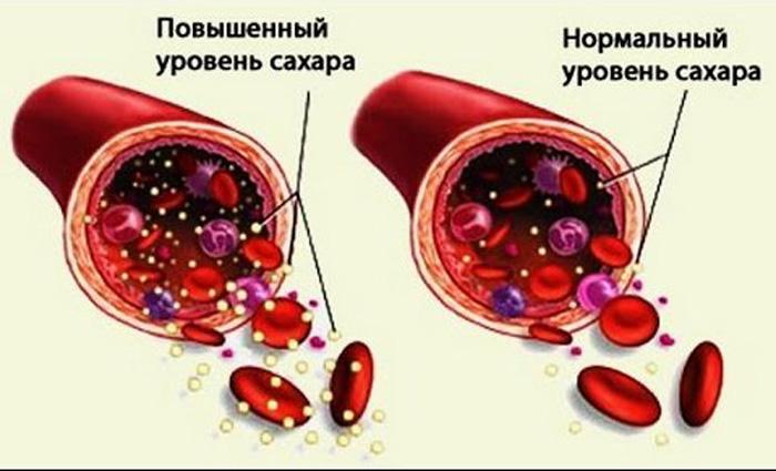 Что делать, если в крови сахар 6,1 ммоль/л (причины и нормы)