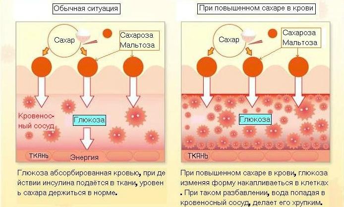 Временно повышенный сахар в крови