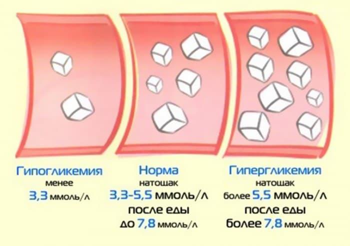 Норма сахара в крови у взрослых