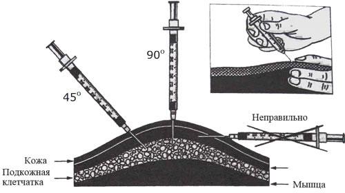 ХУМУЛИН (нпх, регуляр, м3) - инструкция и способ по применению