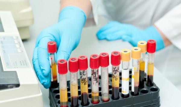 Исследования на гликированный гемоглобин