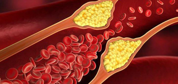 Что такое холестерин сахарный диабет
