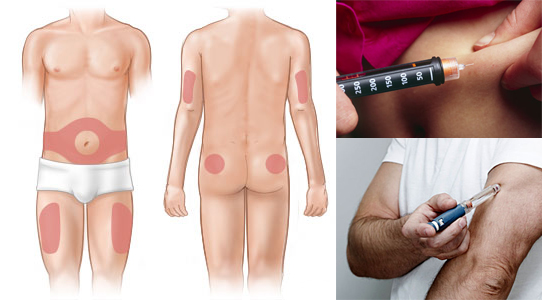 Инсулин вводится при диабете