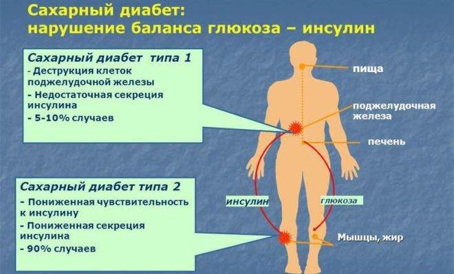 Сахар в крови 6,4 ммольл натощак - что делать? Причины и послед..