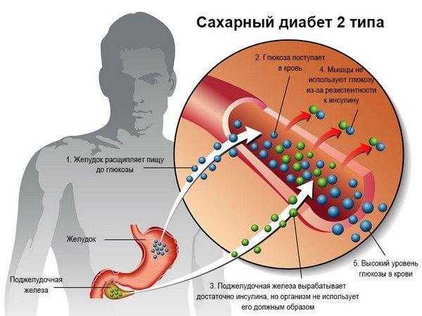 Насколько серьезен диабет 2 типа